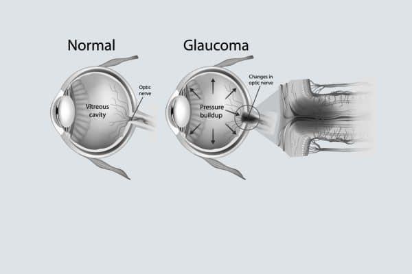 glaucoom leeuwarden