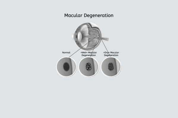 macula degeneratie leeuwarden