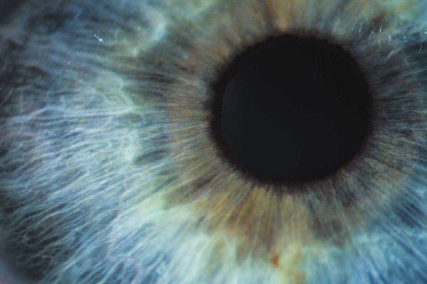 optometrie leeuwarden